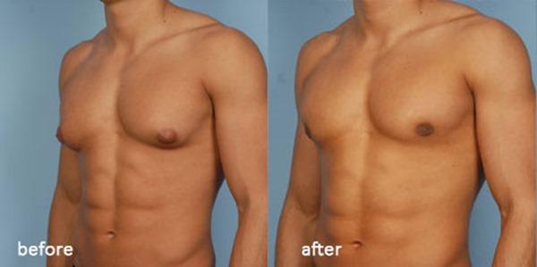 Causas densas del tejido mamario